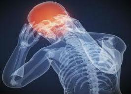 concussion pic 2