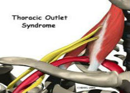 Thoracic Outlet Syndrome: The Scalene Triangle