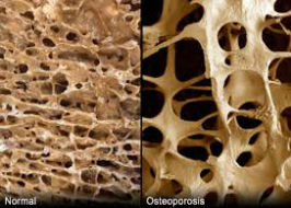 Osteoporosis: Practical Applications for the Clinic