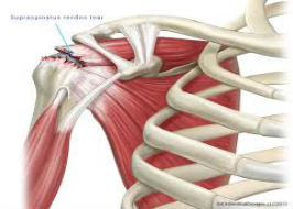 Massive Rotator Cuff Tears: Post operative Management and Rehab