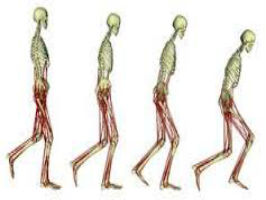 Gait Assessment and Implications in Geriatric Rehabilitation