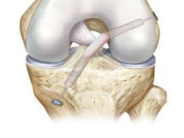 Late ACL Reconstruction Rehab