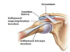 The Biological Basis of Tendonitis and Tendinopathy Course