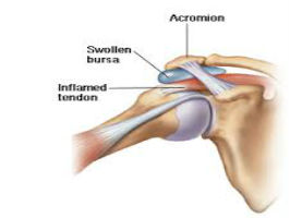 Subacromial Impingement of the Shoulder