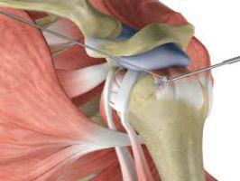 Rehab Following Rotator Cuff Repair