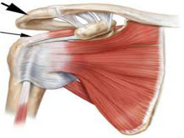 Rehab of Non-Surgical Rotator Cuff Disorders Course