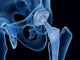 Total Hip Arthroplasty: Maximizing Functional Movement Patterns